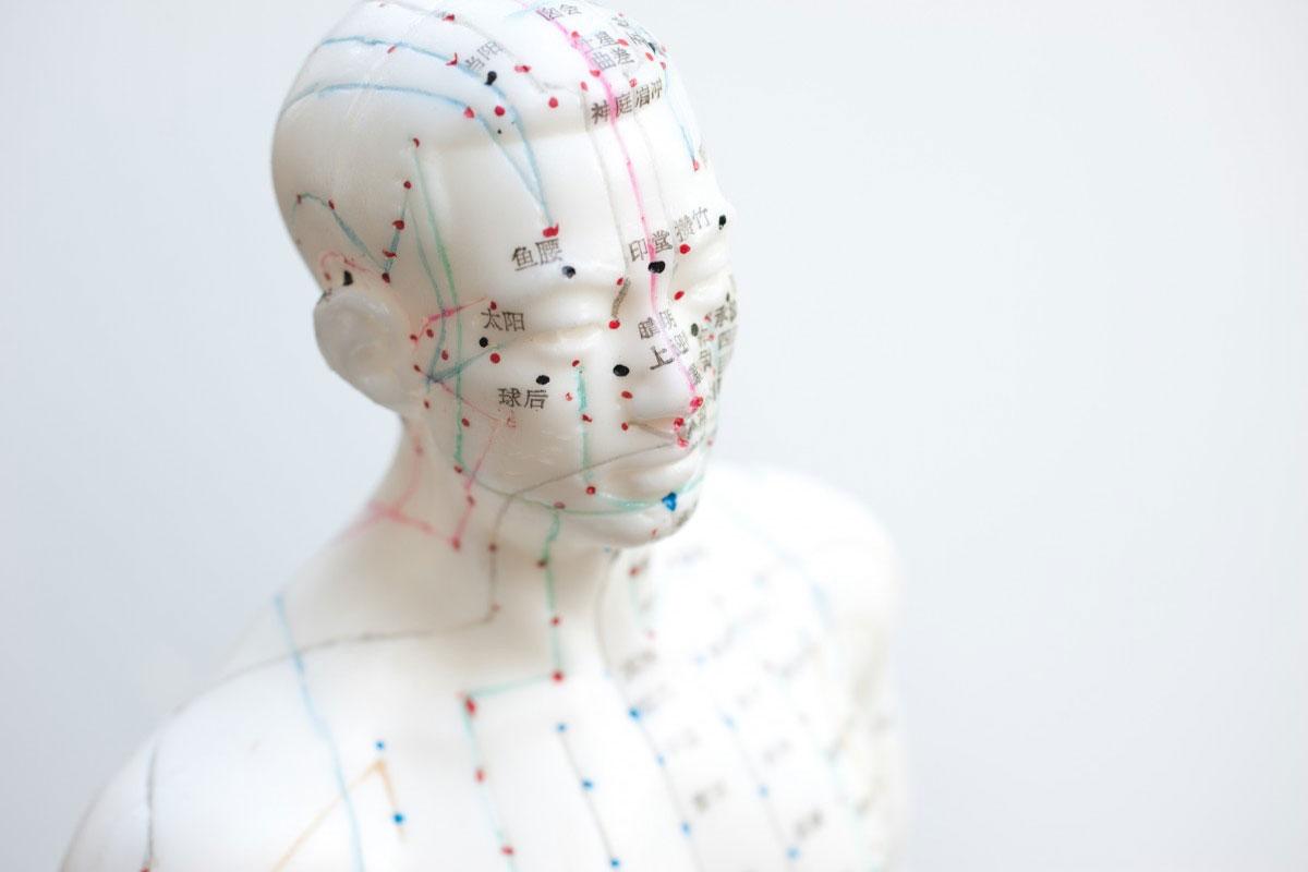 akupunktur-03