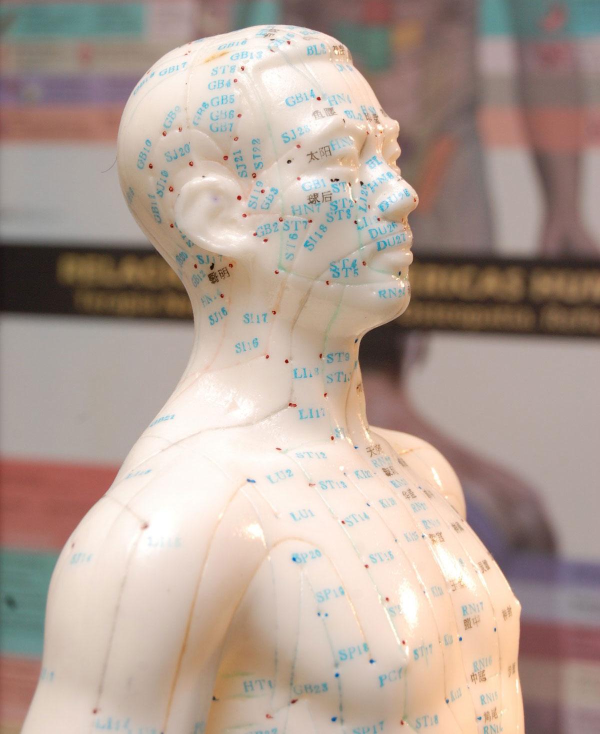 akupunktur-04